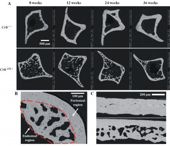 Changes in bone quality in steroid-induced osteoporosis.