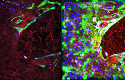 Researchers uncover new evidence that fetal membranes can repair themselves …