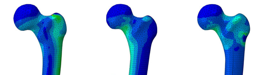 Finite Element Model of principal strains in femoral head