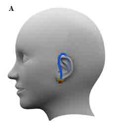 Possible concept for the ear mounted hydration monitoring device.